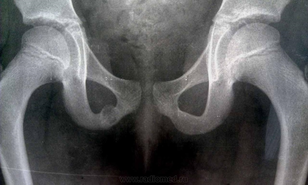 Снимок костей таза