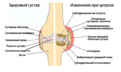 Диагностика артроза на рентгене