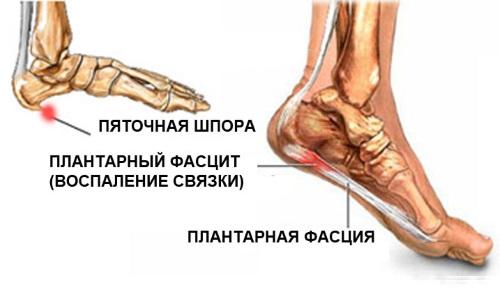 Диагностика пяточной шпоры на рентгене