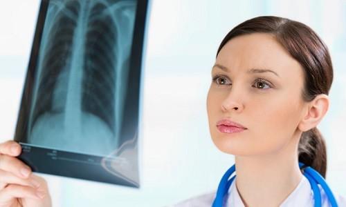 Необходимость рентгена при различных заболеваниях