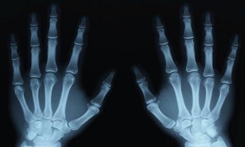 Снимок рентгенографии кистей