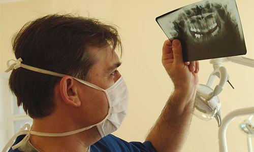 Рентген Шулера при проблемах с зубами