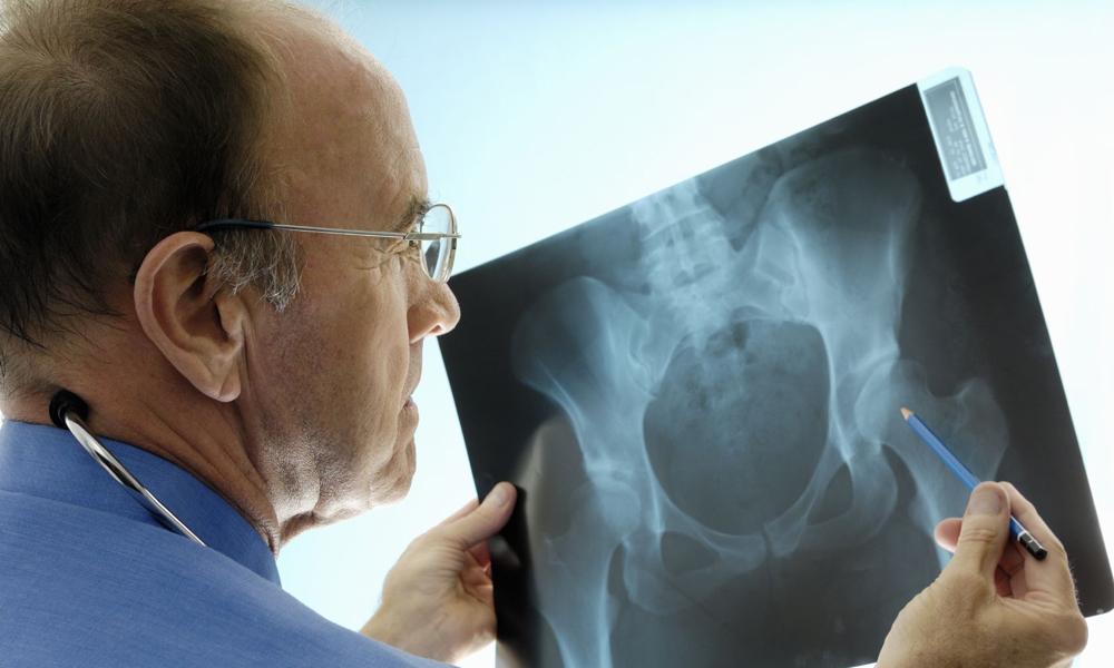 Изучение рентгеновского снимка