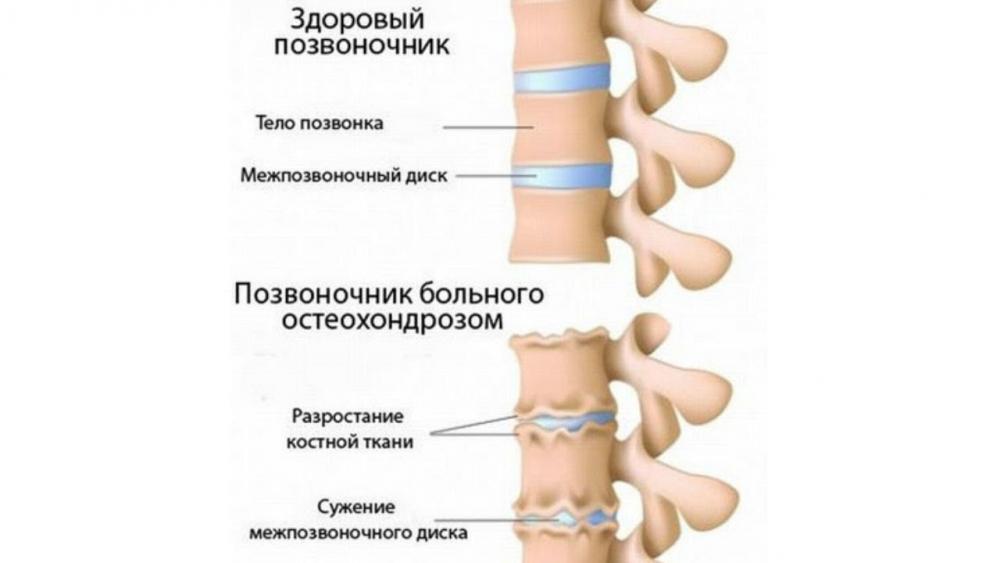 болит шея сзади / почему болит шея сзади