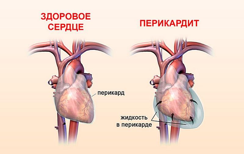 болит сердце симптомы