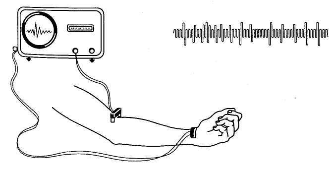 электронейромиография нижних конечностей