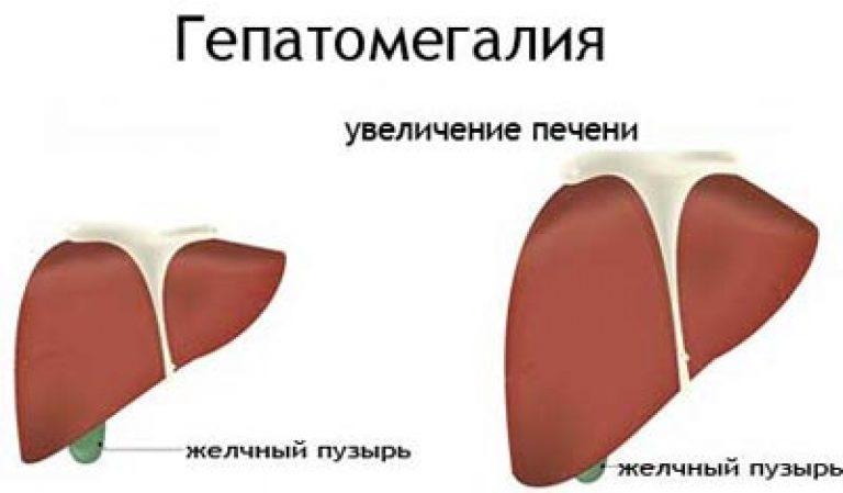 гепатомегалия что это такое