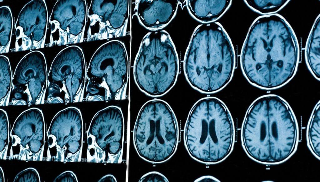 мрт головного мозга как проходит процедура
