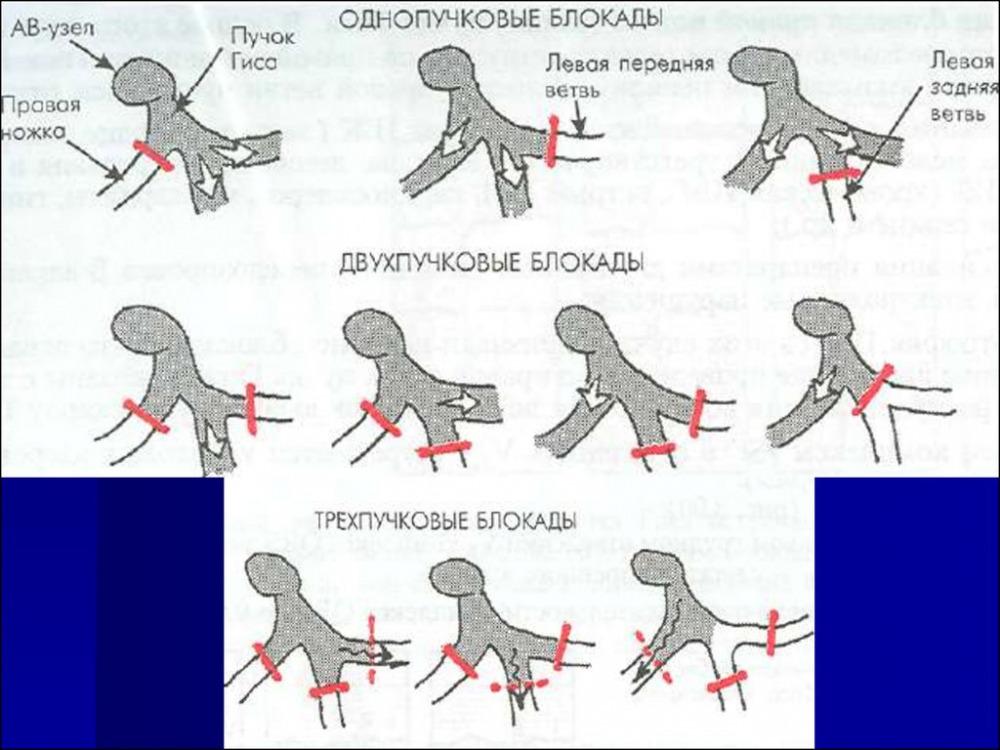 неполная блокада правой ножки пучка гиса (главный ключ)