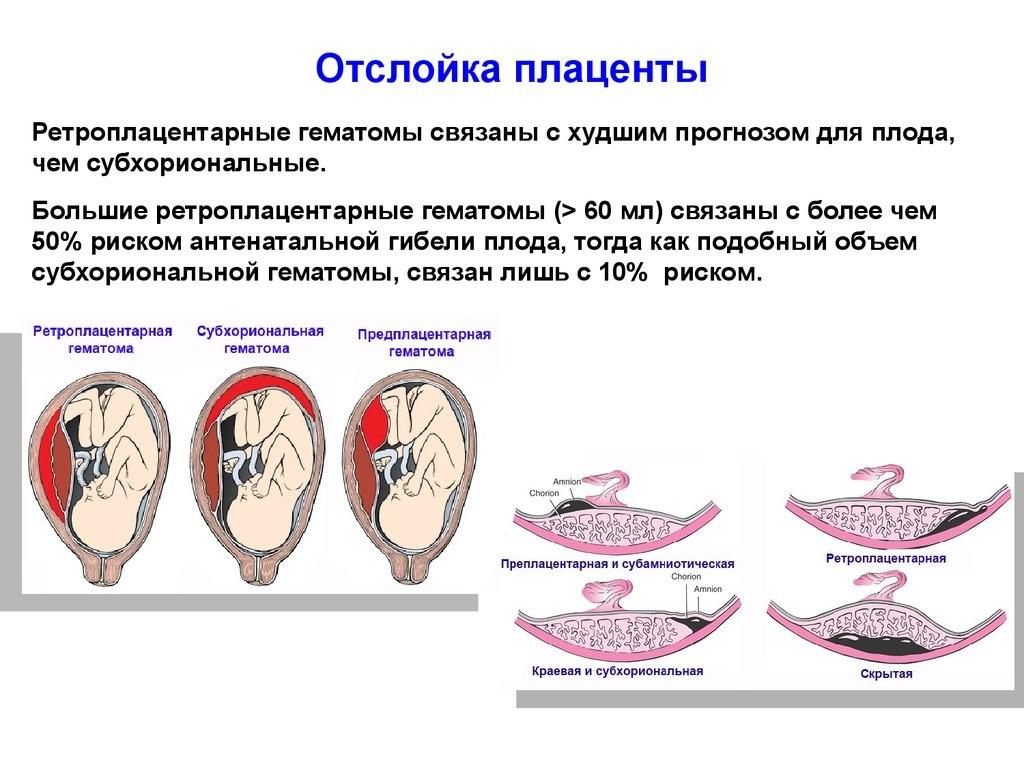 отслойка плаценты на поздних сроках беременности