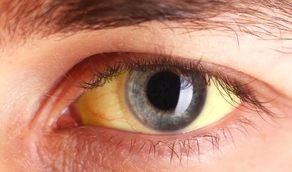 Желтуха: симптомы, заболевания сопровождающиеся желтухой | Медпрайс