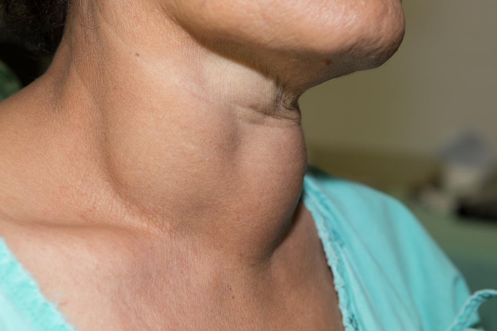 узлы на щитовидной железе чем опасны