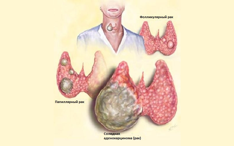 щитовидная железа узлы размеры норма