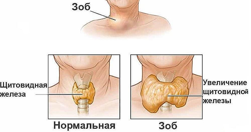 анализ крови на гормоны щитовидной железы