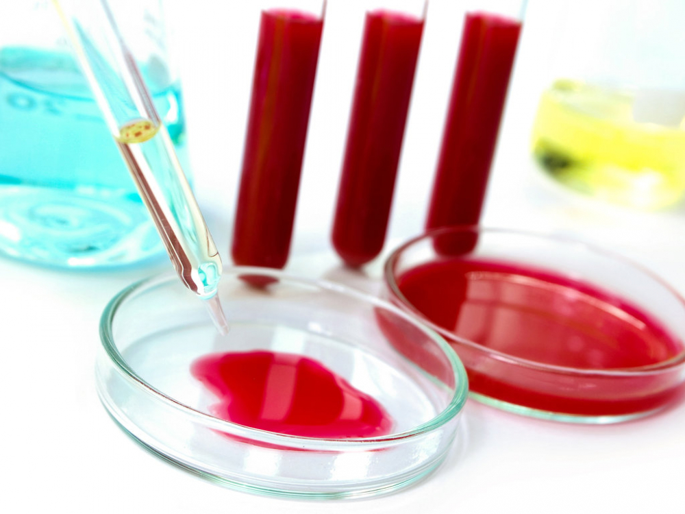 ЛДГ крови: что это такое в биохимическом анализе, причины повышения ...