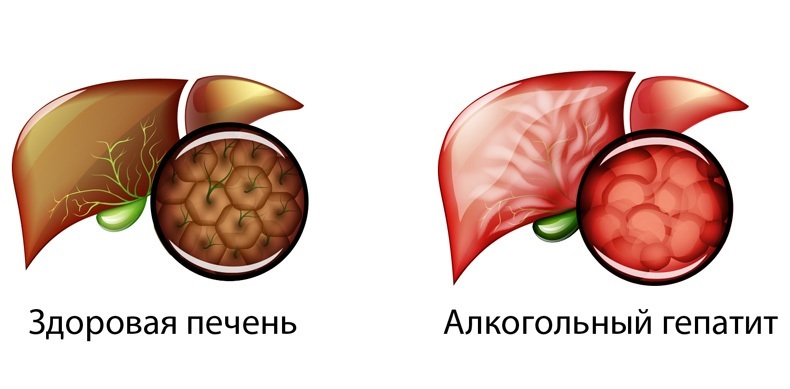 анализ крови лдг повышен