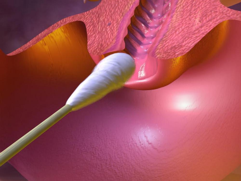 Мазок на флору: норма лейкоцитов | WMJ.ru