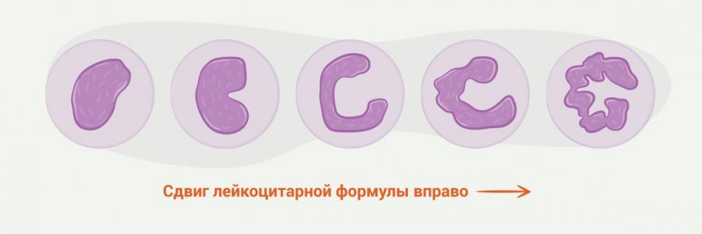 segmentoyadernye-nejtrofily-povysheny