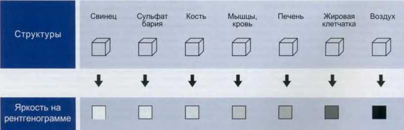 яркость различных анатомических структур на рентгенограмме