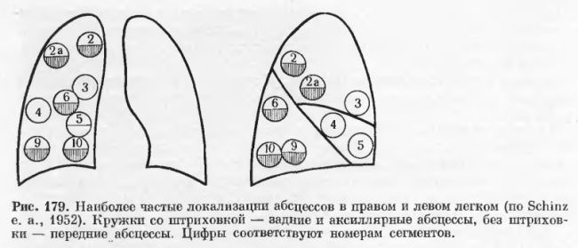 локализация абсцессов на рентгене легких