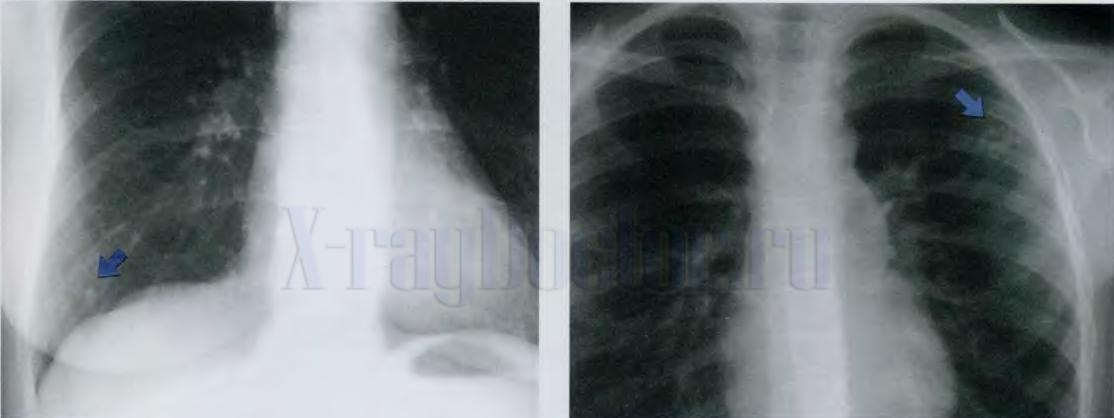 рентген показывает рак легких небольших размеров