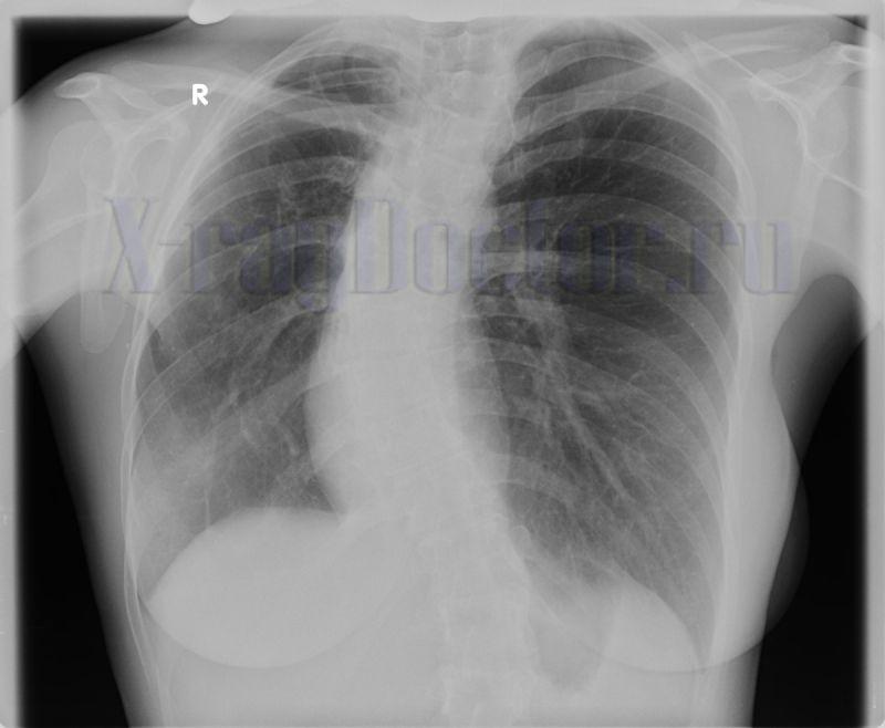 пятна в легких на рентгене при нижнедолевой пневмонии