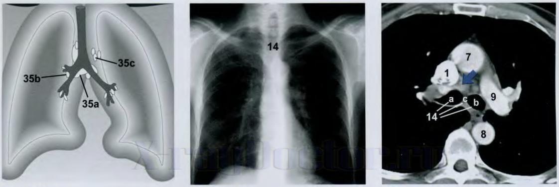 Метастазы в легких - как выглядят на рентгеновском снимке и как проявляются, терапия и питание