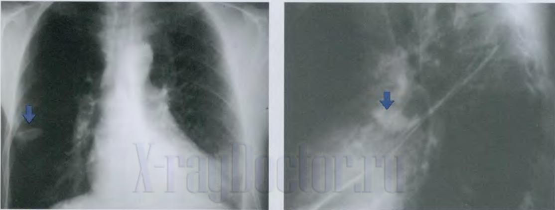 раковая опухоль в легком на рентгенограмме