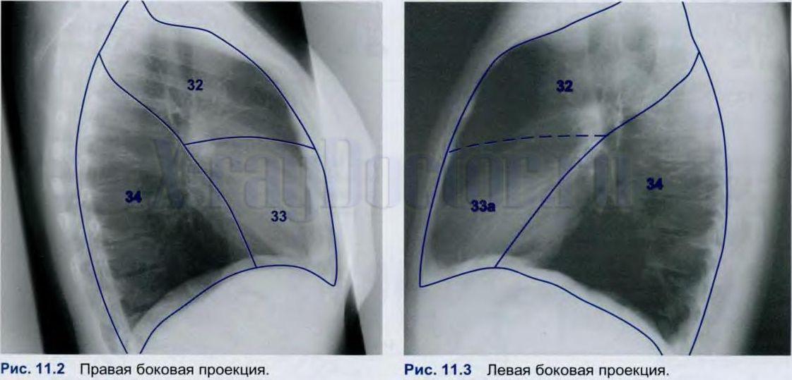 сегментарное строение легких на рентгенограмме