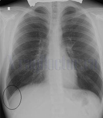 жидкость в области реберно-диафрагмального синуса на рентгене