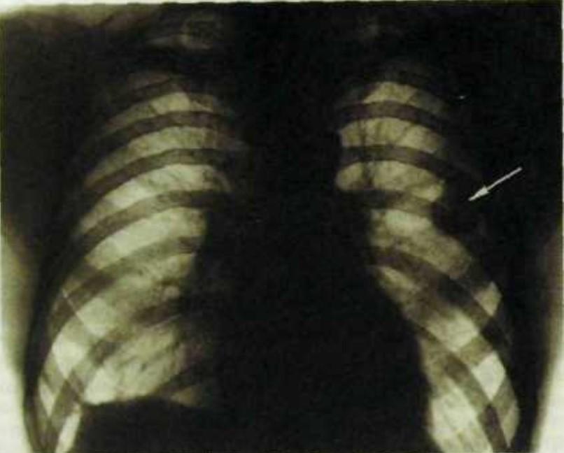 Фото рентгенограммы легких при эхинококковой кисте