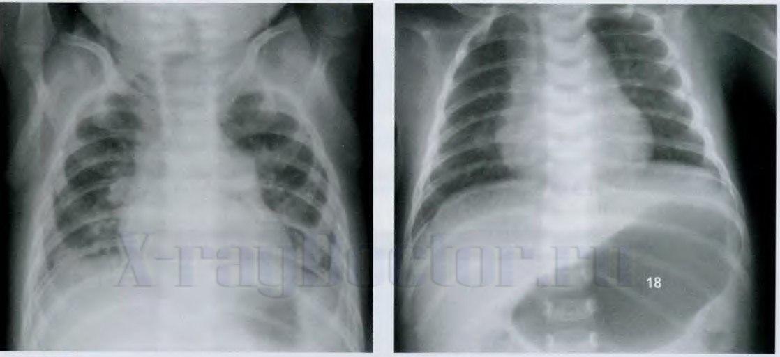 Рентгенограммы легких новорожденного