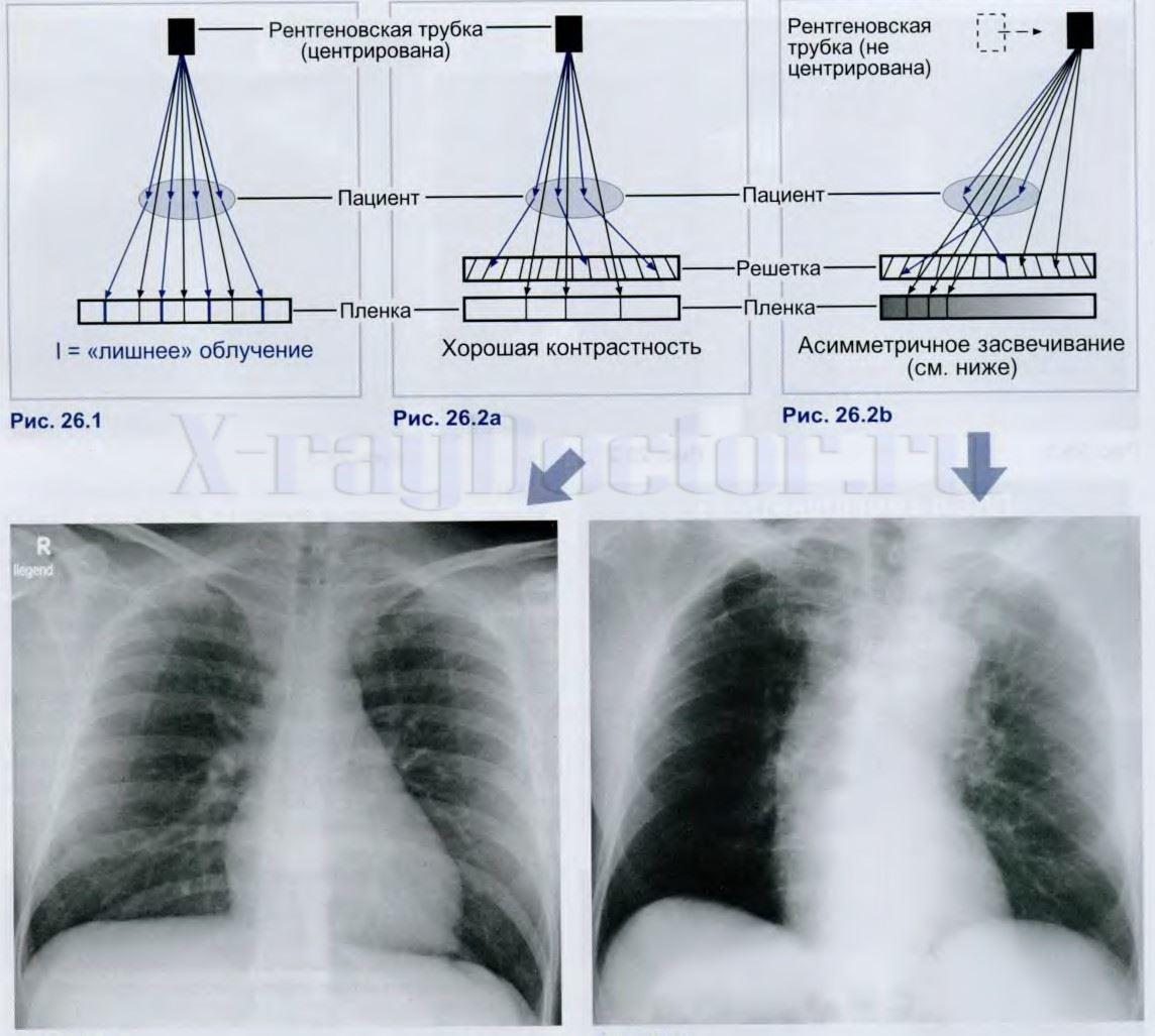 Схема влияния отсеивающей решетки рентген аппарата на качество снимков