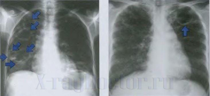 Туберкулезные каверны после перенесенного процесса