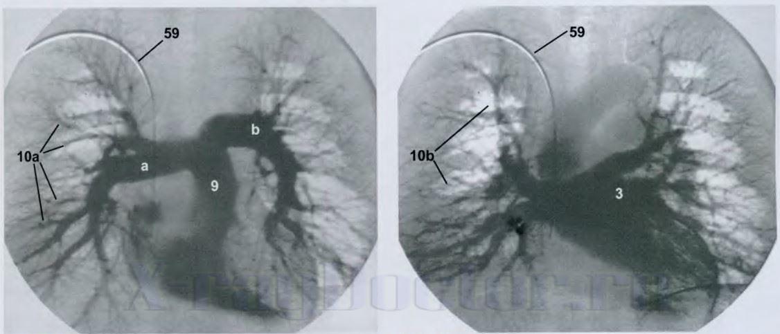 деформированные корни легких (бронхит)