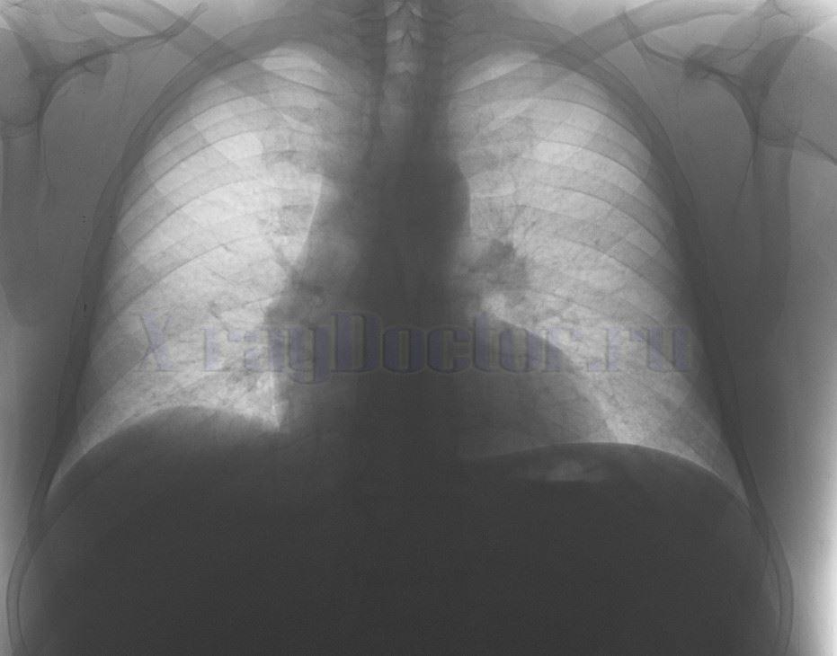 Рентген при бронхите фото