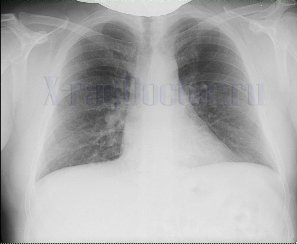 на рентгене видно признаки раковой опухоли