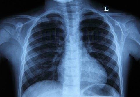Фото обзорной рентгенограммы легких