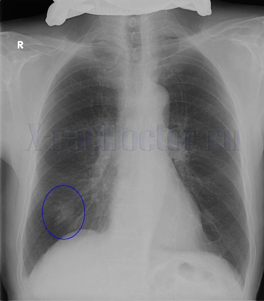 опухоль легкого на рентгене