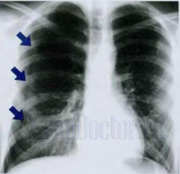 пневмоторакс на рентгенограмме