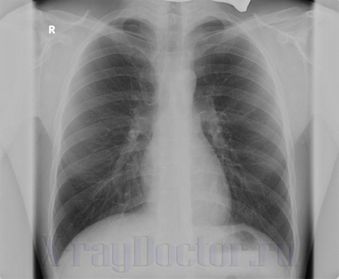рентгенография органов грудной клетки при хроническом обструктивном бронхите