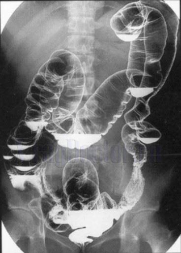 Рентгенограмма желудка