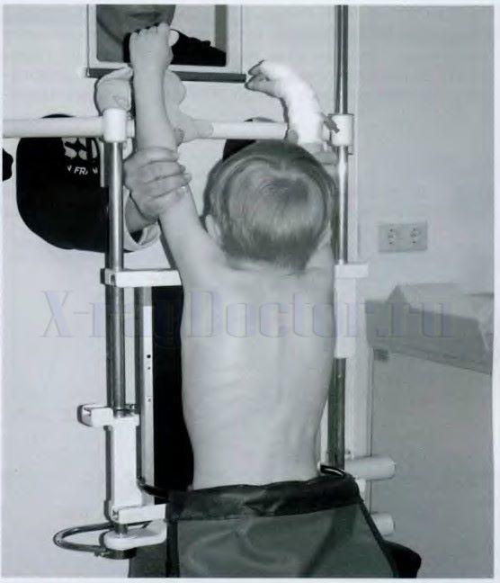 укладка ребенка при рентгенографии легких
