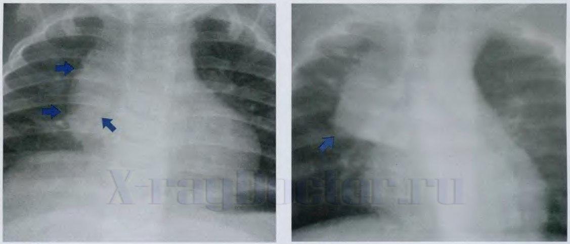 Рентгенограммы увеличенной вилочковой железы у школьников