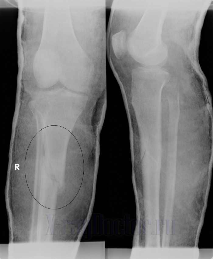 Снимок при переломе большеберцовой кости