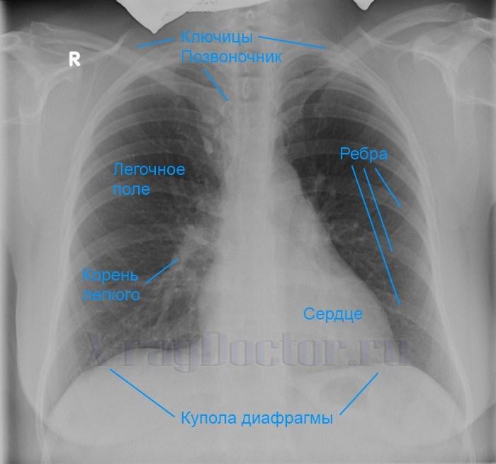 рентген грудной клетки в норме