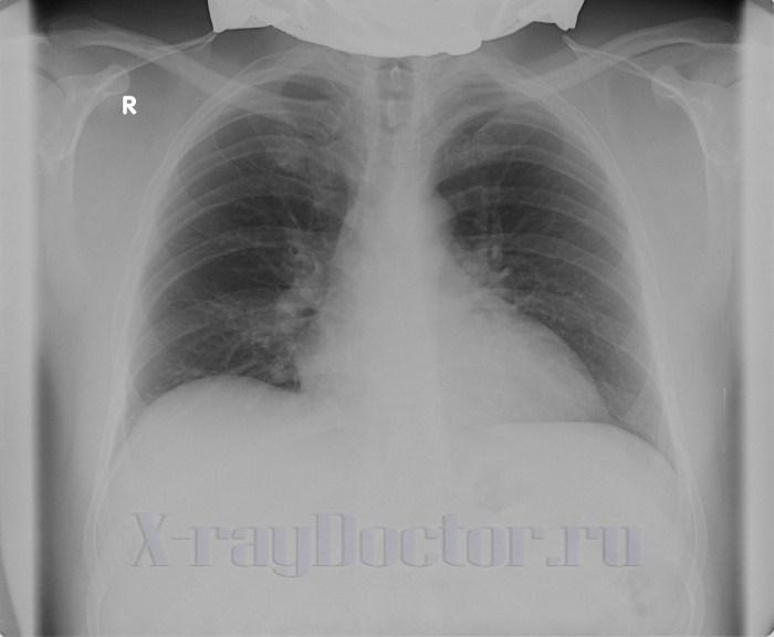 рентген грудной клетки пациента 55 лет с миопатией