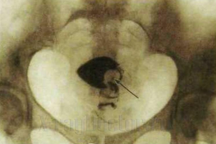 рентген матки