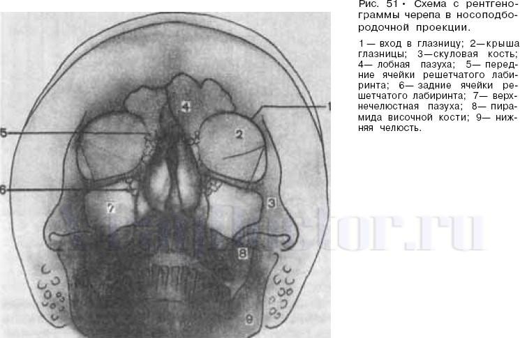 рентген околоносовых пазух