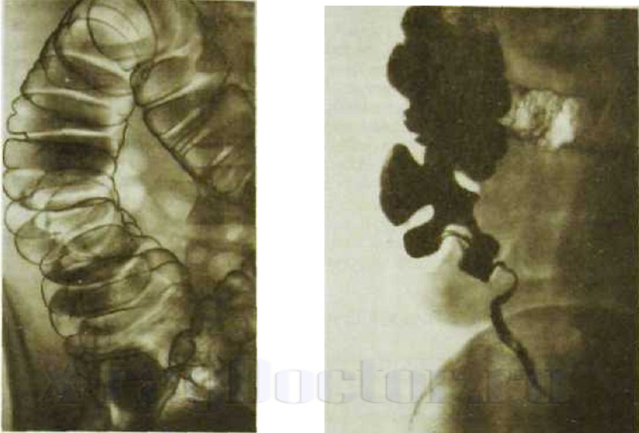 Обзорная рентгенография брюшной полости подготовка